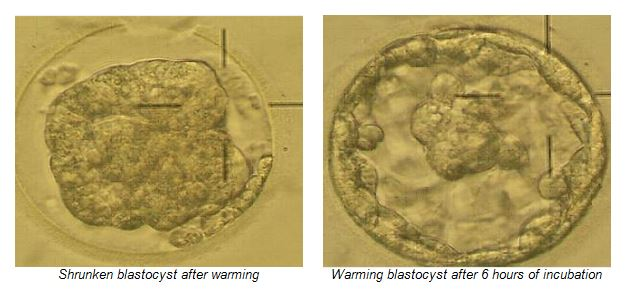 Embryo Freezing - Medfem